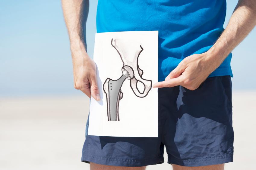 Эндопротезирование тазобедренного сустава отзывы омс деформированный артроз коленного сустава